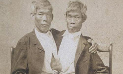Chang ve Eng siyam ikizleri